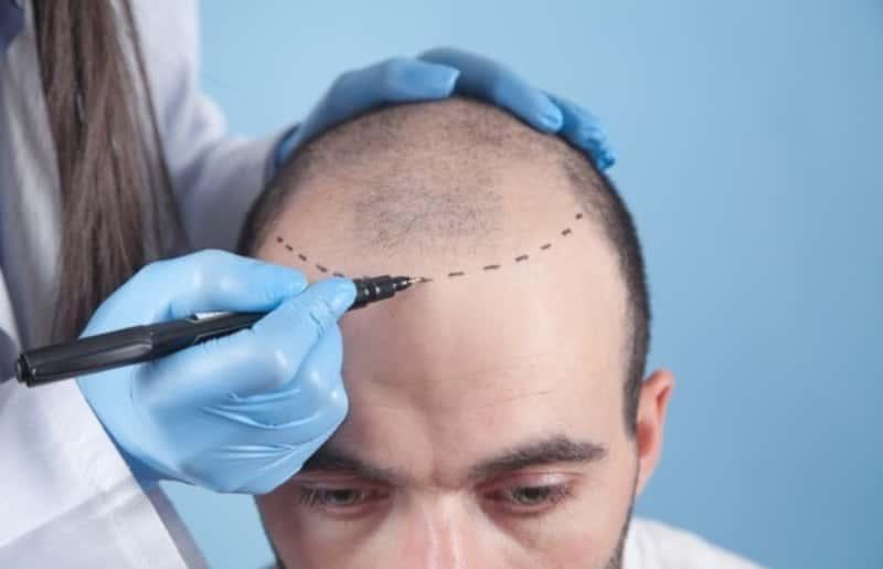 Hair Transplant क्या है इसके फायदे और नुकसान